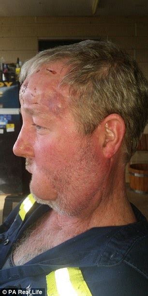Queensland man's 'cold sore' was actually skin cancer that