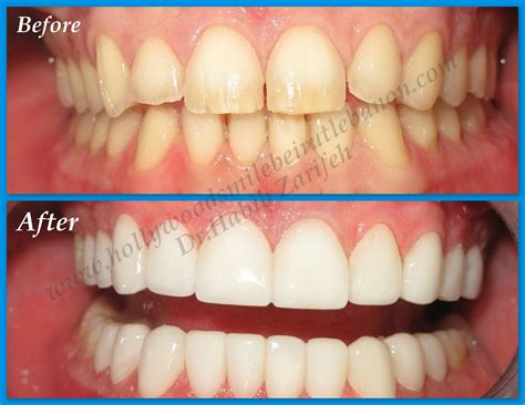 Hollywood Smile Before and After Cases   Hollywood smile