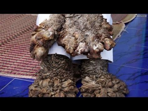 Medical Mystery: What happened to 'Tree man'? - YouTube