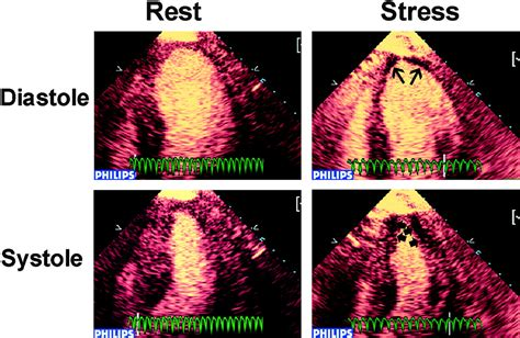 Real-time perfusion echocardiography during treadmill