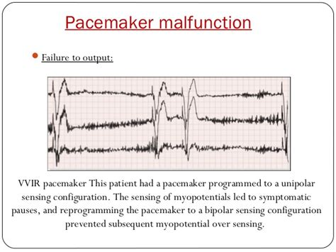 Electrical testing of pacemaker